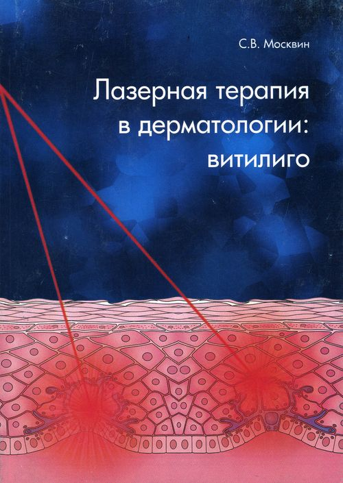 Дерматология. Лазерная терапия в дерматологии: витилиго.